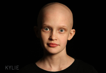 In the past 25 YEARS, the FDA has initially approved only THREE DRUGS for a childhood cancer.